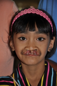girl with bi-lateral cleft
